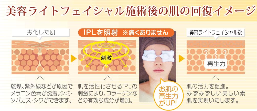 美容ライトフェイシャル施術後の肌の回復イメージ